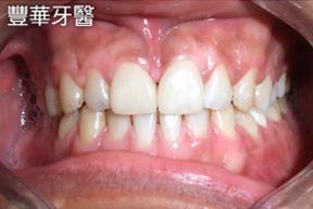 豐華牙醫案例照