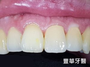 豐華牙醫新增案例 2-1