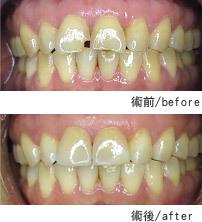 豐華牙醫.水晶美齒貼片